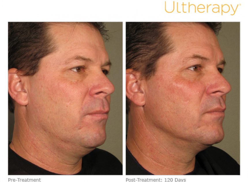 ous_ultherapy-0058d_before-120daysafter_full