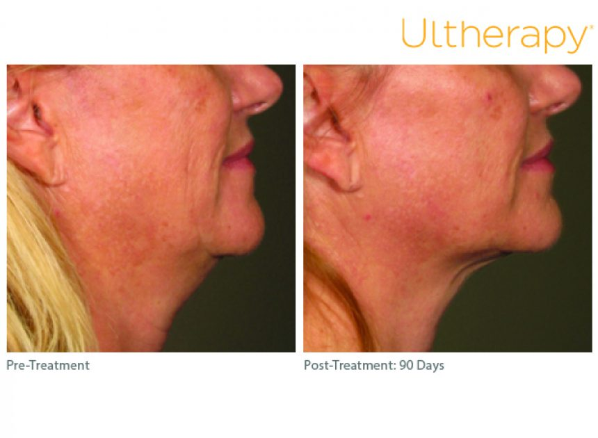 ous_ultherapy-0283j-r_before-90daysafter_lower3_low-res