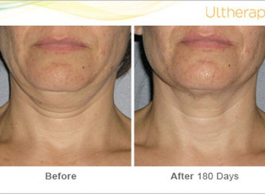 ous_ultherapy_0026-0086w_beforeandafter_180day_1tx_neck1